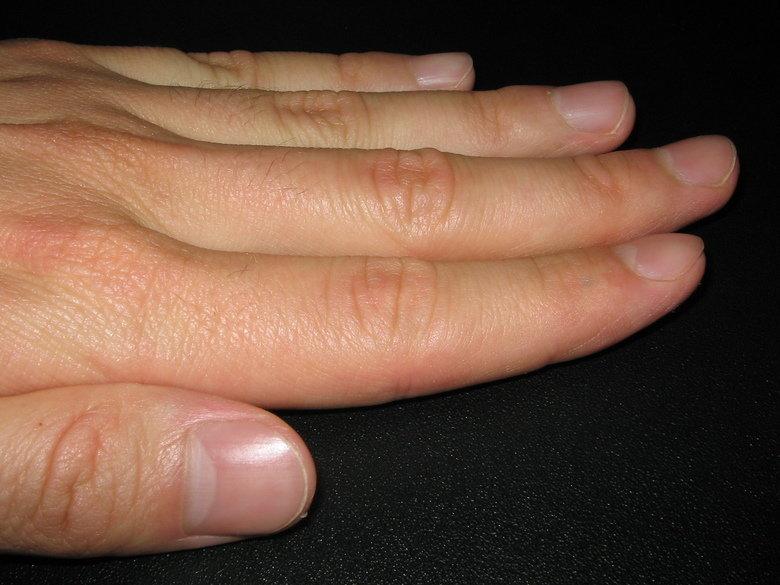 fingernail comp, Human Body