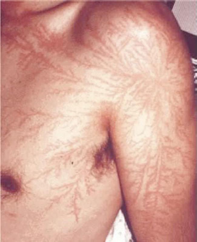 фото шрамов от лезвия