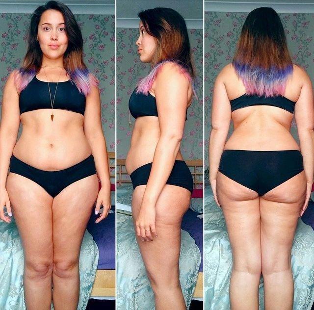ДЕКСАМЕТАЗОН и лишний вес! форум Womanru