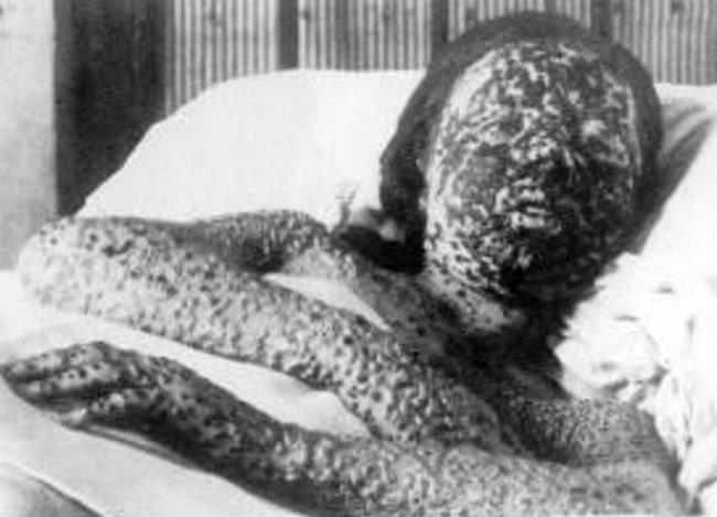 Marburg virus symptoms